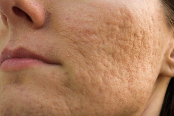 Acne scars improve after topical Platelet rich plasma