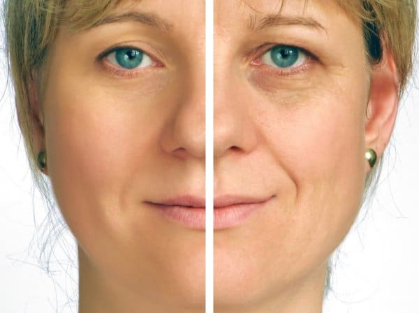 PRP for skin rejuvenation improves the appearance of wrinkles