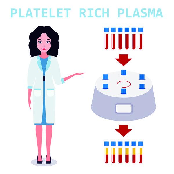 platelet concentration PRP
